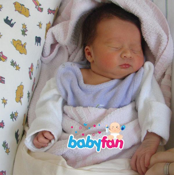 Gelbsucht Baby
